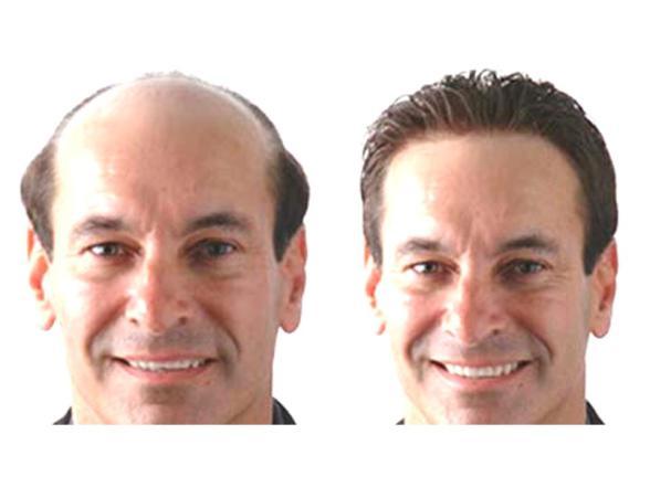 Micro Hair Fix
